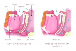 A diagram illustrating Obstruction Sleep Apnea (OSA).